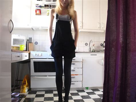 A Life without Anorexia: My half recovery