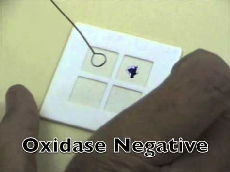 Bacterial oxidase test