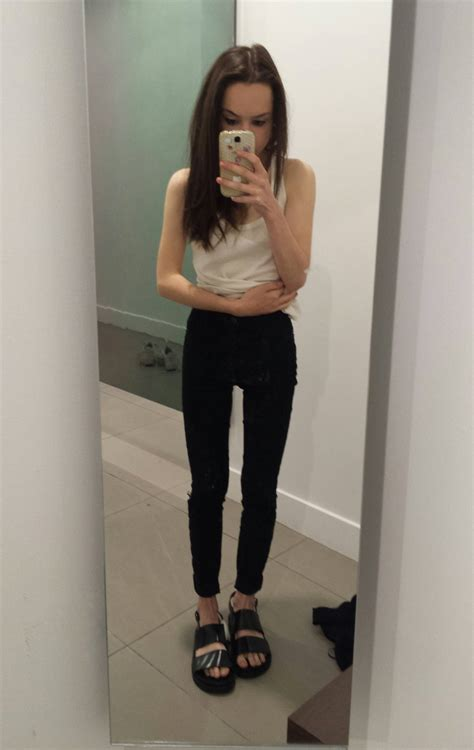 BMi 14-15 - Anorexia Discussions - Forums and Community